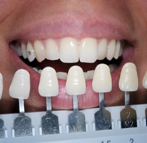Matching the colour of the teeth